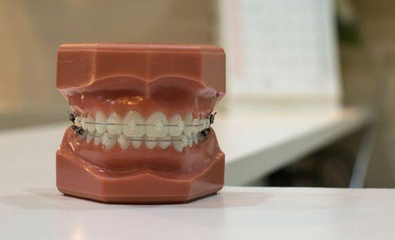 odlew szczęki z zębami