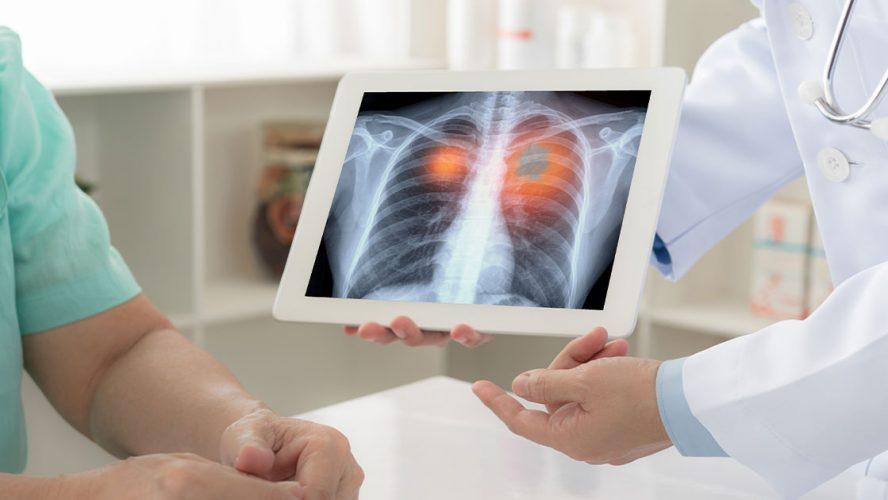 Nowoczesne-leczenie-niedrobnokomórkowego-raka-płuca