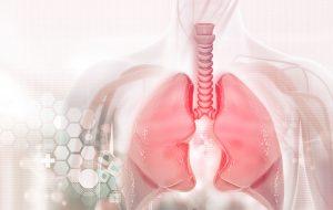 płuc nowotwór