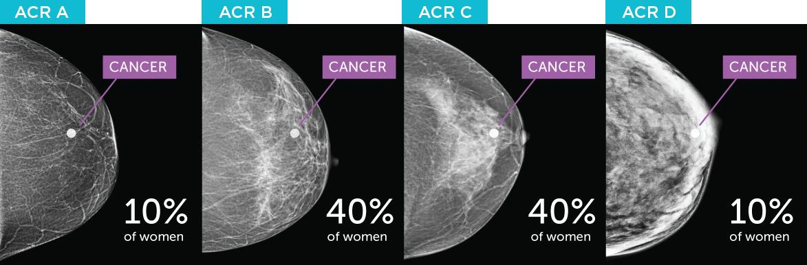 Breast density diagram