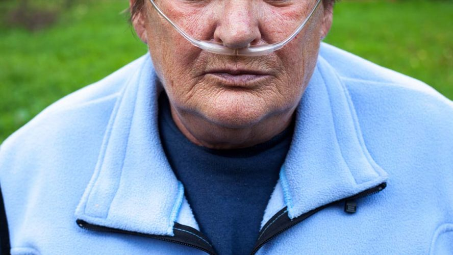 Senior with COPD using an oxygen tube