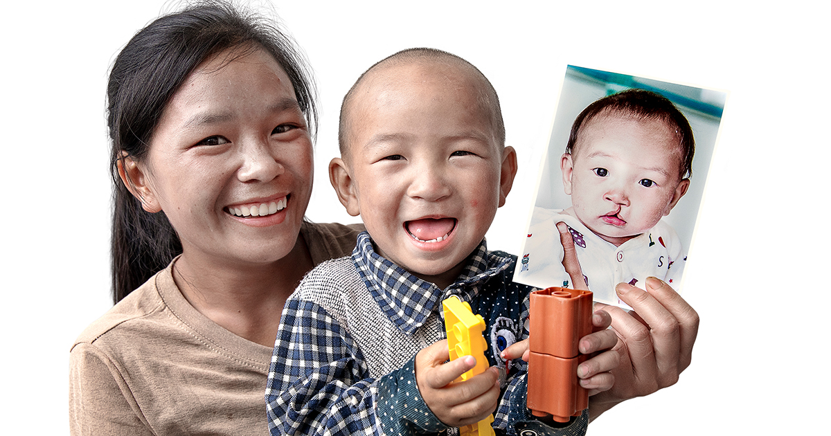 A lady and her child posing after a successful cleft surgery
