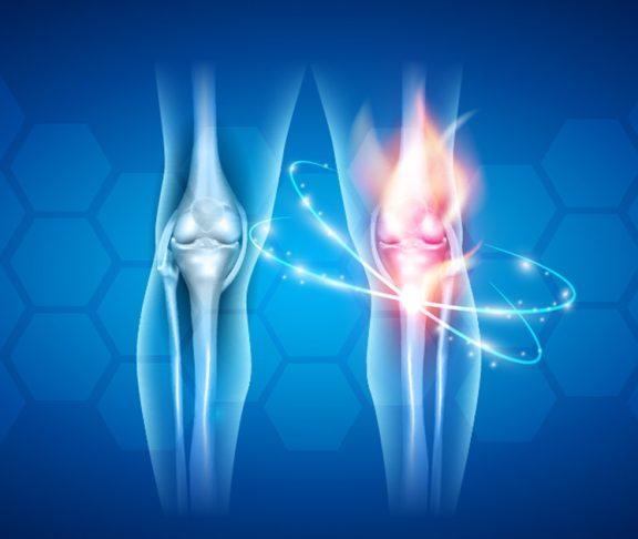 knee pain rendering