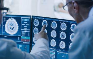 fasd doctors examining brain scan