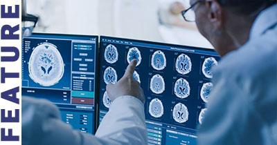 doctors-examining-brain-scan-lp