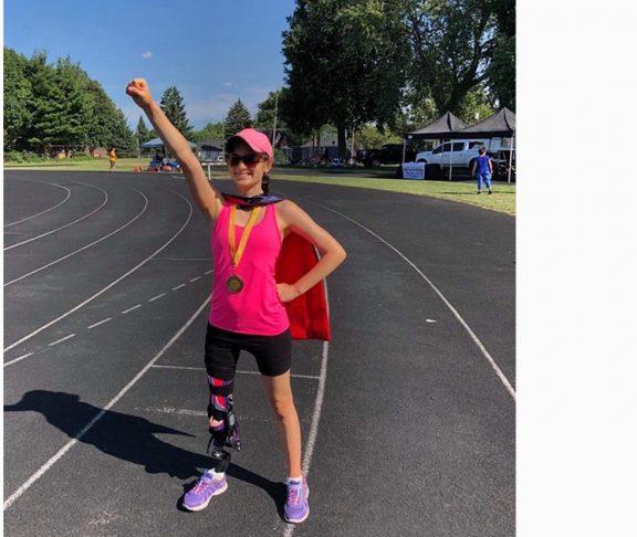 emma prosthetic leg childhood cancer
