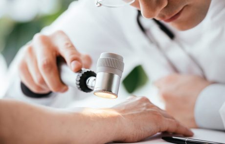 selective focus of dermatologist in glasses holding dermatoscope near hand of patient