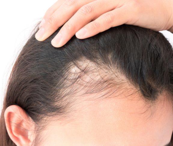 Haarausfall – Der schleichende Prozess