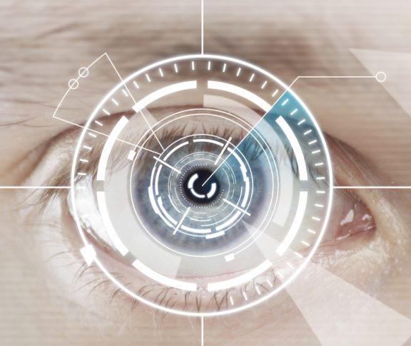 Laser-Linsenaustausch mit multifokaler IOL