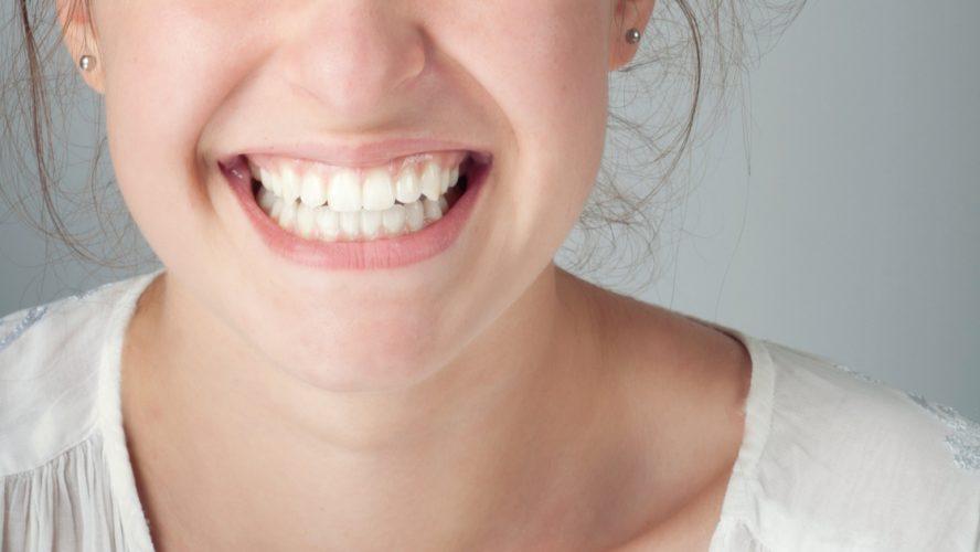 Unsichtbare Zahnkorrektur im Erwachsenenalter