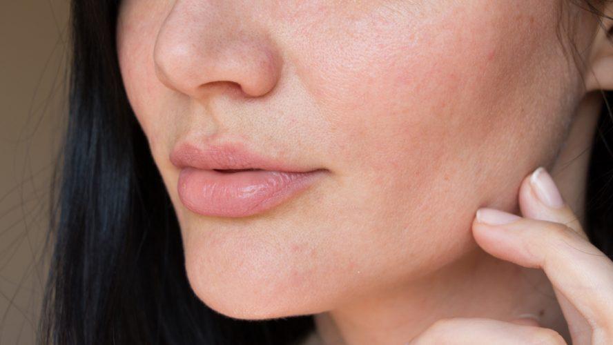 Reparaturprozess der Haut – Zellwachstum durch feine Nadeln