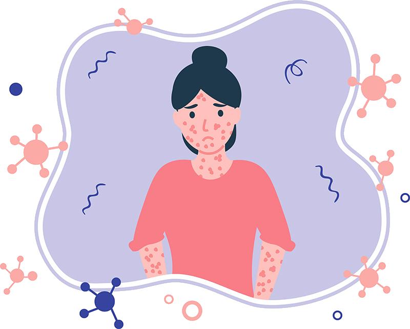 atopic-dermatitis-bg