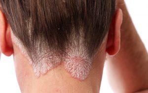 psoriasis i hodebunn