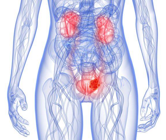 blærekreft illustrasjon