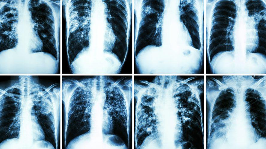 Lunger