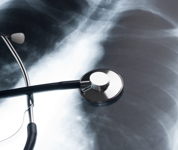 Physician stethoscope on an XRAY of a human chest