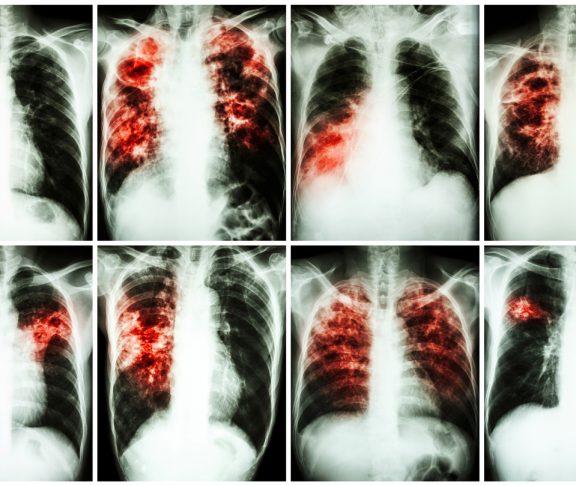 Photos of pulmonary tuberculosis