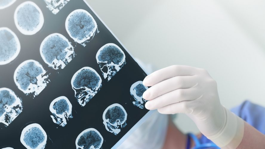 Medical experts studies the EEG condition of the patient