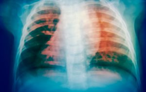Close up bone x-ray
