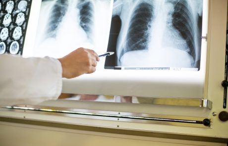Doctor's hand pointing at x-ray image of chest of a patient. Close up of doctor pointing at medical xray reports.