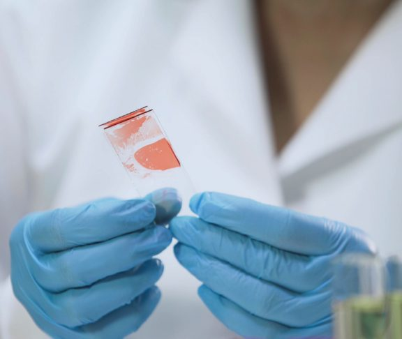 Medical worker analyzing microbiological specimens, blood sample, HIV test