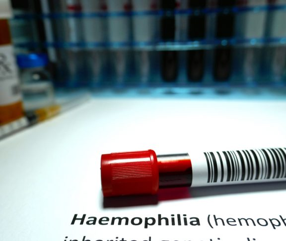 Haemophilia - blood disorder abstract.