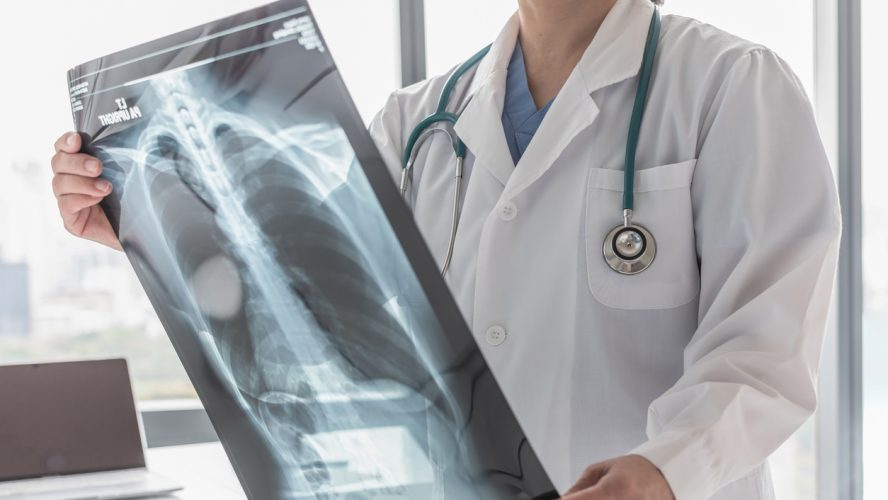 Doctor with radiological chest x-ray film for medical diagnosis on patient's health on asthma, lung disease and bone cancer illness