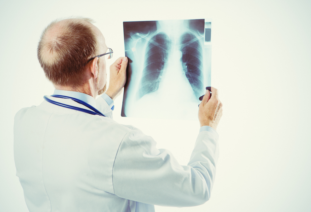 Rear view of a doctor holding up an X-ray of someone's chest and looking at it.