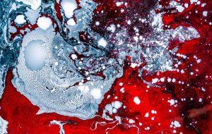 blood myeloma