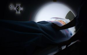cancer surgery radiation therapy