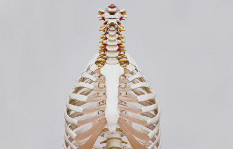 spine pain MSK