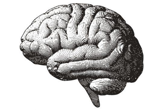 brains drawing radiology