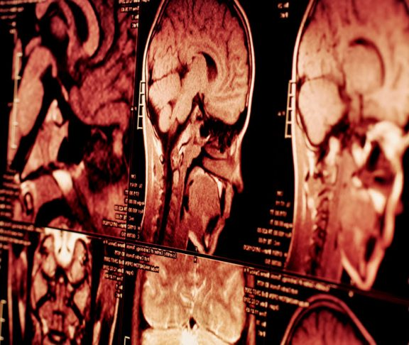 imaging scans brain