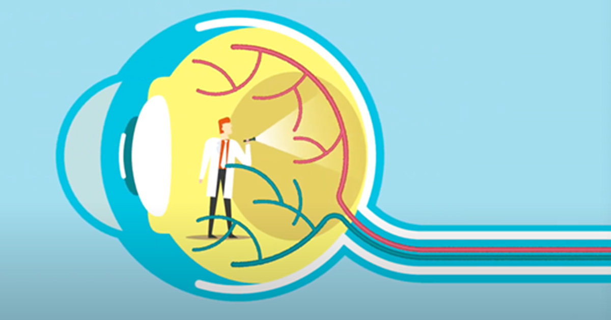 Back of eye diagram