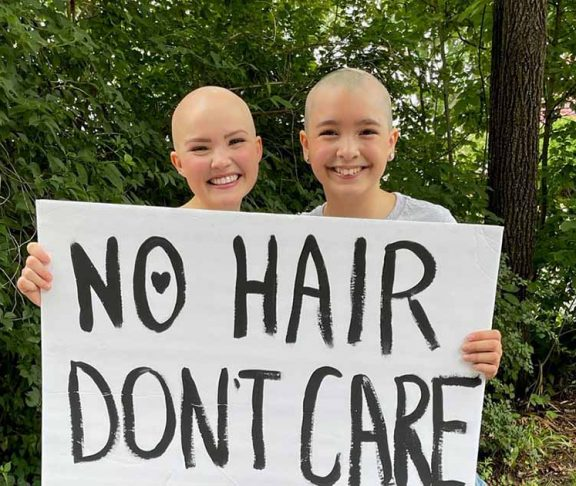 women hair loss alpopecia areata
