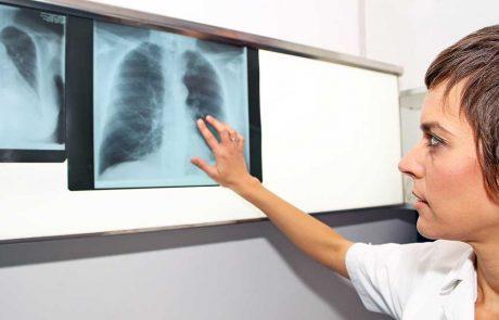 Kvindelig læge kigger på røngtenbilleder af lunger