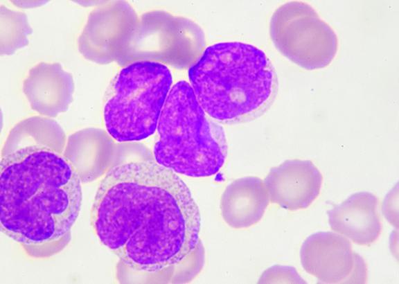 Krooninen Lymfaattinen Leukemia