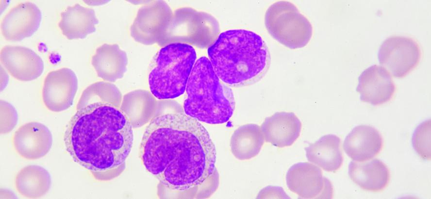 Krooninen Leukemia