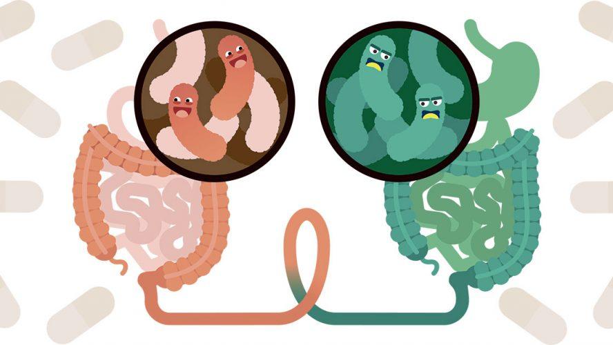 Illustration med sundt og sygt tarmesystem