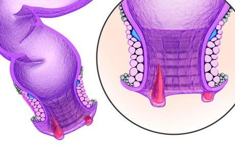 Illustration af hæmorider på endetarm