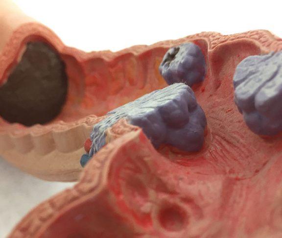 Model af tarmsystem med kræftknuder