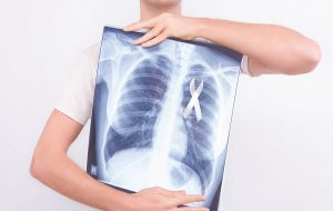 Oncological lung cancer disease concept. Guy male man holding medical lung body x-ray photo with pinned white ribbon as a symbol of lung cancer on white isolated background