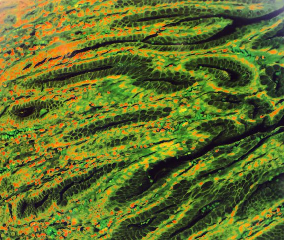 Gastric mucosa intestinal metaplasia under microscopy