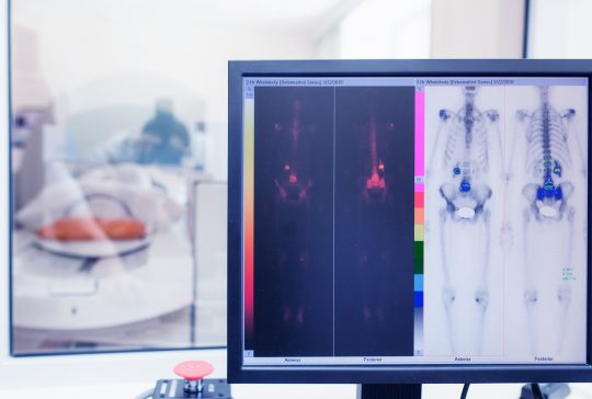 isotope study in the laboratory of computed tomography. radioactive study on the detection of bone cancer