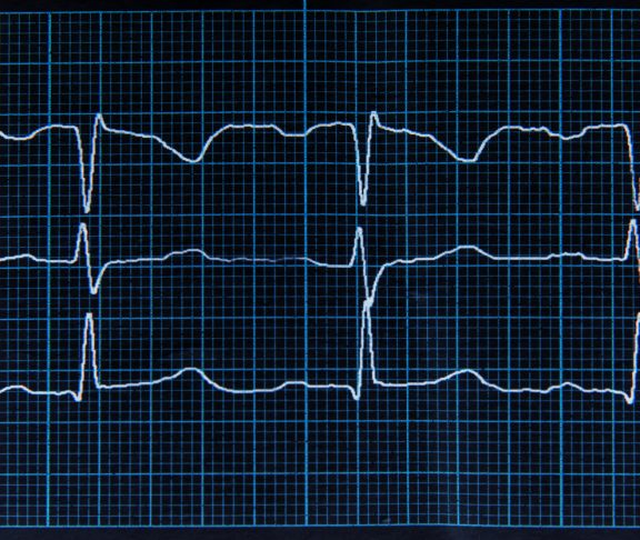 Close up. Normal ECG with arrhythmia elements. The heartbeat lines on the monitor screen are blue.