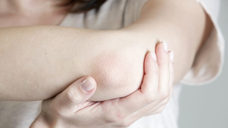 Winterizing dry itchy skin on the elbow area