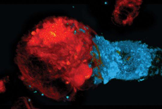 celler cancer