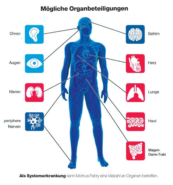 Schlaganfall, Organbeteiligung