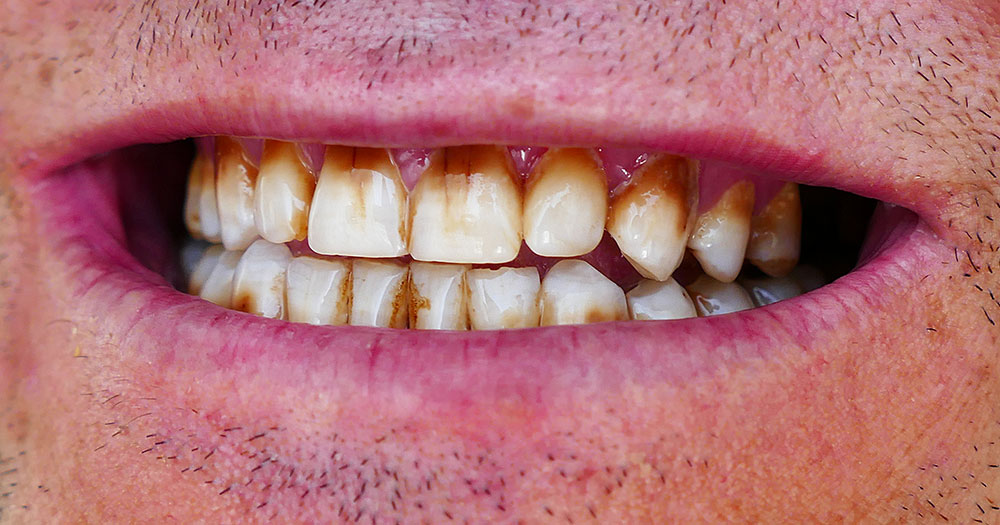 suun terveys