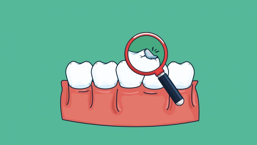 suun-hyvinvointi-keholle-keho-suu-yhteys